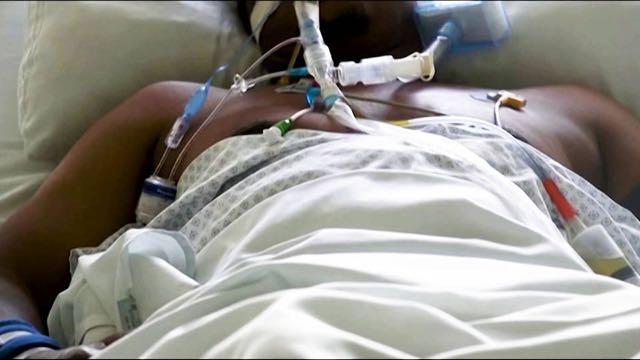 COVID-19: Sudáfrica abrumada por oleada de casos; Brasil supera las 200.000 muertes